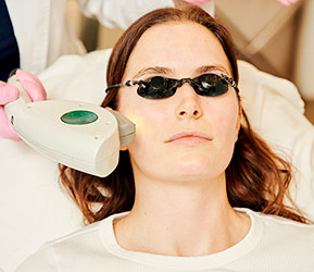 IPL Photofacial by Eugenia, West Hollywood